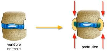 mecanisme-protusion-discale