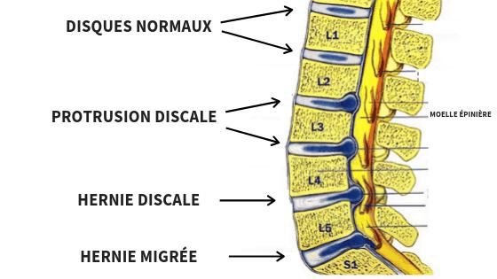 protrusion-discale-1